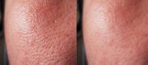 Cómo deshacerse de los poros abiertos de forma permanente.Belleza ... - tipsdebellezamodasaludyalgomas.com