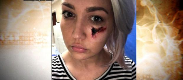 Singer Meghan Linsey explains horrific venomous spider bite on her go.com