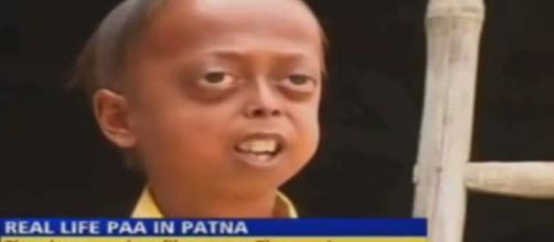 El niño de 14 años que envejece ocho veces más rápido de lo normal - telecinco.es