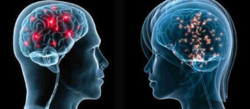In alto, un cervello umano e i suoi neuroni