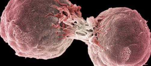 Inmunoterapia: El tratamiento contra el cáncer que sustituirá a la elpais.com