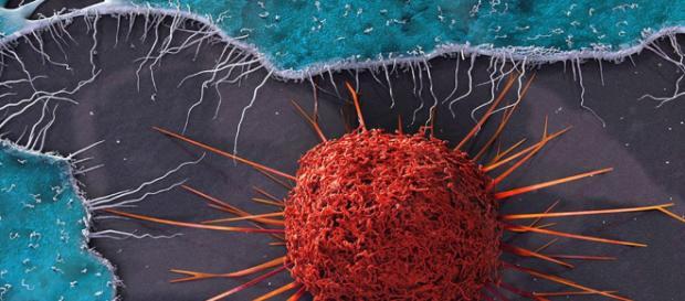 Qué es el cáncer de cuello uterino? - INCART - gob.do