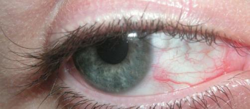El síndrome de la vista cansada