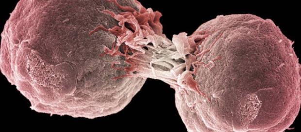 Inmunoterapia: El tratamiento contra el cáncer que sustituirá a la- elpais.com