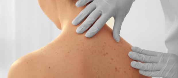 Por qué salen las manchas del sol en la piel - cosmeticos24h.com