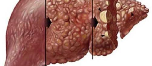 20m Nigerians Carry Hepatitis Virus' - THISDAYLIVE - thisdaylive.com