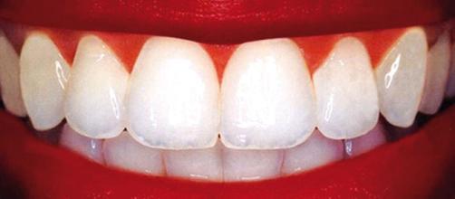 Cómo prevenir y tratar las caries dentales de forma natural — DSalud - dsalud.com