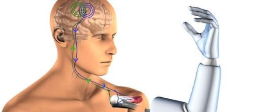 Diseñan la primera prótesis con conexión directa a hueso, nervios ... - pinterest.es