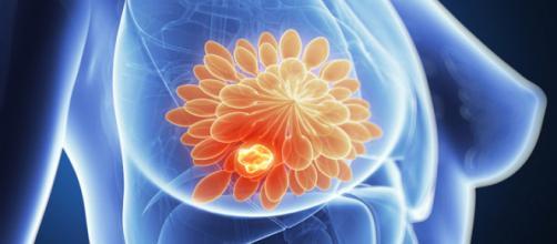 Tumore al seno: il nuovo protocollo 'Federica' del Pascale di Napoli