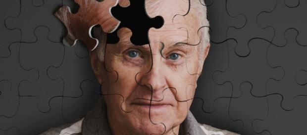 El herpes y el alzhéimer están relacionados, afirma reciente estudio del Hospital Sinaí