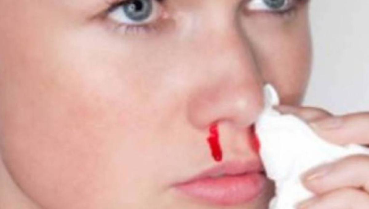 como detener una hemorragia nasal en los ninos
