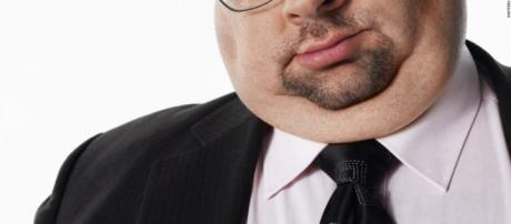 Adiós a la papada! La FDA aprobó el destructor de grasa en el ... - cnn.com