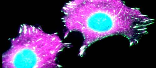 Cancro al seno, donna curata nel Maryland utilizzando le sue stesse cellule.