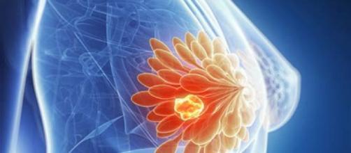Secondo una ricerca molte donne non necessitano di chemioterapia.