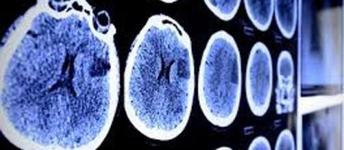 Scoperto meccanismo che causa metastasi nel cervello - lastampa.it