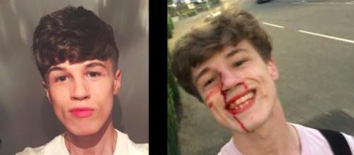 Blair Wilson combatte le violenze omofobe con un selfie