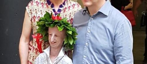 Sammy Basso, el chico progeria, se graduó en Ciencias Naturales