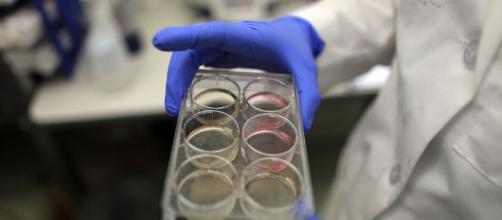 Sclerosi multipla, in Italia la prima infusione di cellule staminali