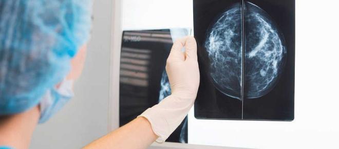 Se investiga la muerte de una mujer que trataba su cáncer con terapia alternativa