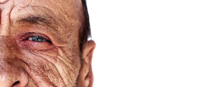 Experimento de Bill McElligott: un lado de la cara más sano por el uso de filtro solar