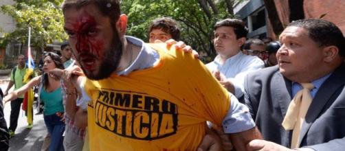 El Diputado Opositor al regimen de Maduro, Juan Requesens