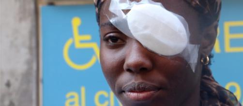 Presi gli aggressori di Daisy Osakue, l'atleta ferita due giorni fa a Moncalieri