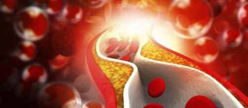 """Livelli elevati di colesterolo """"buono"""", HDL non proteggono la salute del cuore"""
