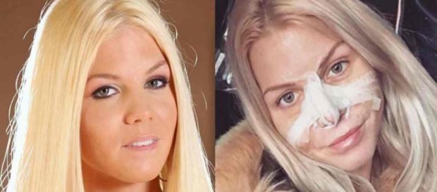 LMvsMonde3 : Jessica Thivenin va subir une nouvelle opération de chirurgie esthétique