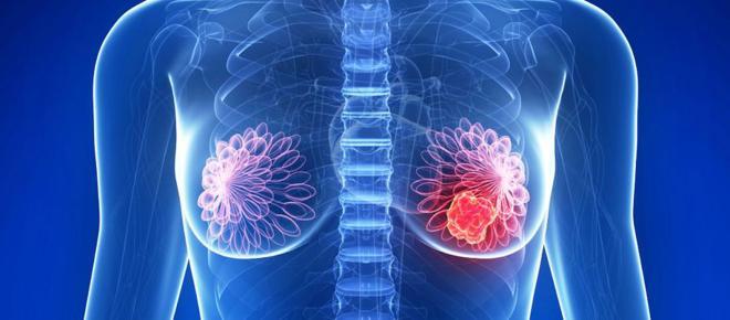 Científicos encuentran indicadores para diagnosticar un cáncer de mama muy agresivo