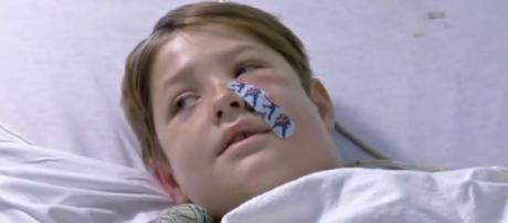 Xavier Cunningham miraculously survived falling from a tree onto a meat skewer. [Image Associated Press/YouTube]