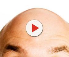 Calvizie: in Europa ogni anno il 15% in più di trapianto capelli ... - gosalute.it