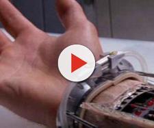 Medici installano una mano bionica a una donna