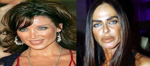 As celebridades que exageraram nas cirurgias plásticas. (Foto: Reprodução Internet).