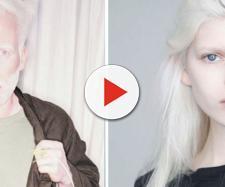 A beleza albina realmente impressiona.