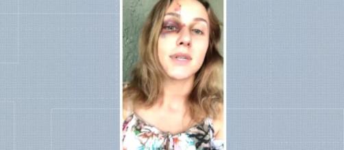 Universitária Brasileira espancada pelo namorado