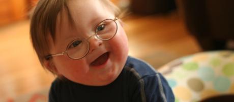Stati Uniti: coniugi adottano bimbo con sindrome di Down come la loro prima figlia - coordown.it
