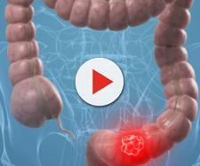 Alcuni sani consigli per una buona prevenzione del cancro al colon-retto.