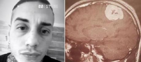 Francesco Chiofalo, parla la madre: 'Non si sa se il tumore è benigno o no'.