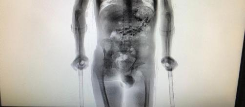 Homem é detido com objetos no estômago. Fonte: G1.