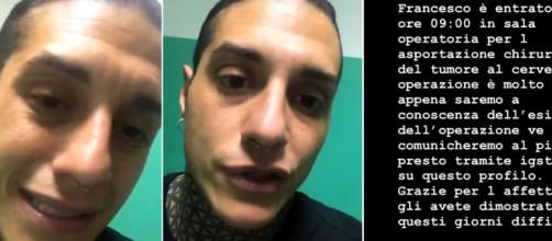 Francesco Chiofalo informa i fan sul decorso post-operatorio