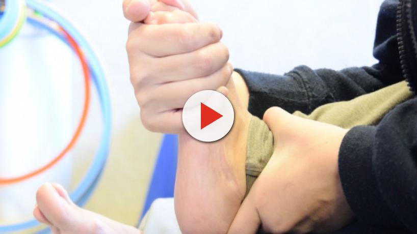 La fisioterapia es decisiva en el tratamiento de la parálisis cerebral infantil