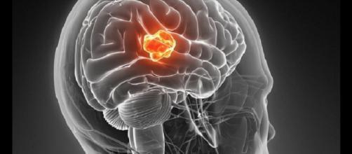 Il glioblastoma è un tumore cerebrale molto aggressivo e finora con scarse opzioni terapeutiche.
