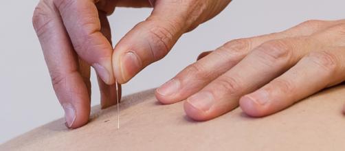 Agopuntura - Metodo MIE - metodomie.com