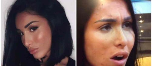 Léana (Les Vacances des Anges 3) se confie sur le calvaire qu'elle a vécu à cause de son acné.