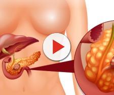 I principali fattori di rischio del tumore al pancreas.