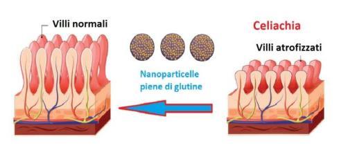 Una nuova tecnologia basata sull'uso di nanoparticelle potrebbe bloccare la reazione al glutine nei celiaci.