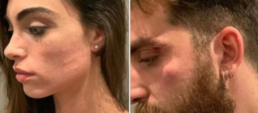 Lorella Boccia di Amici su IG: 'Io e mio marito aggrediti e derubati da uomini di m...'