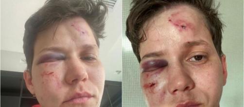 Polícia descartou homofobia em agressão contra Karol Eller. (Reprodução)