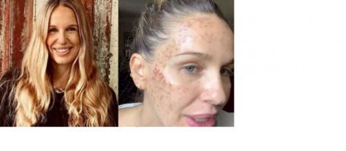 Carola Baleztena será denunciada por la clínica que acusó de mala praxis