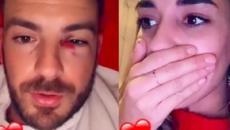 Julien Bert furieux, sa chérie Hilona lui a fait un coquard : 'On doit aller à l'hôpital'